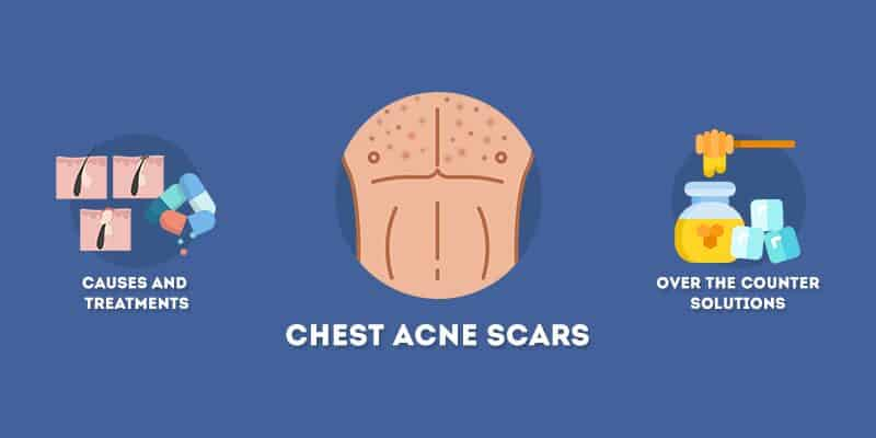 Chest Acne Scars Causes and Treatments