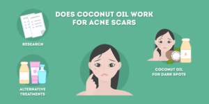 Does Coconut Oil Work for Acne Scars
