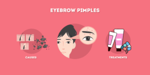Eyebrow Pimples - Causes and Treatments
