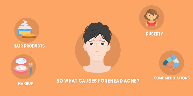 What Causes Forehead Acne