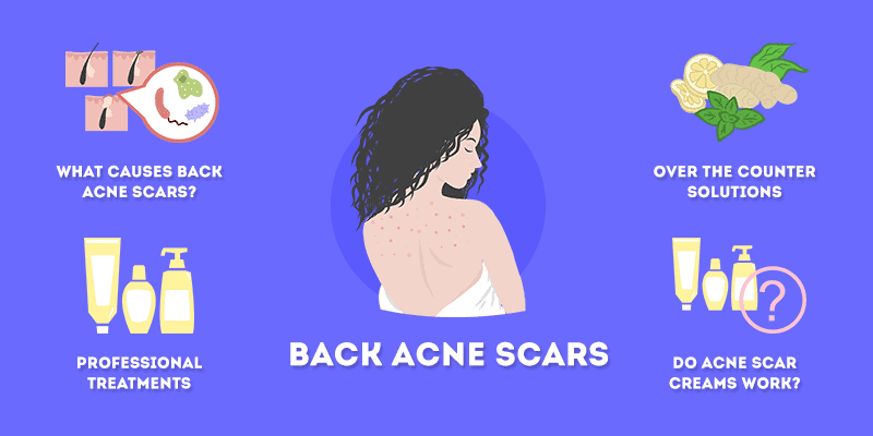 back acne scars treatment and prevention information