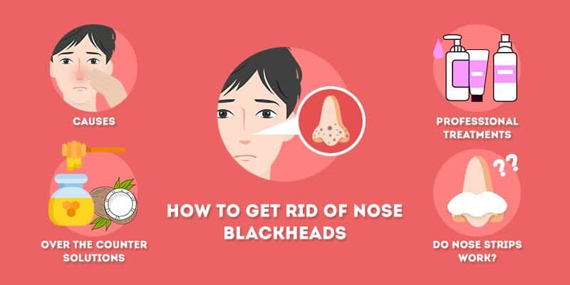 How to Get Rid of Nose Blackheads Permanently