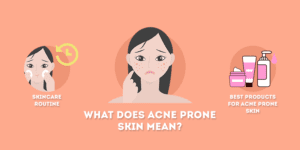 What Does Acne Prone Skin Mean
