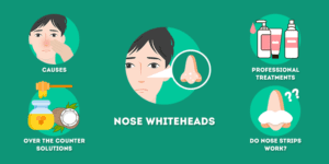 Whiteheads on Nose - Causes and Treatments