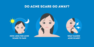 do acne scars go away on their own