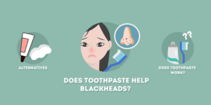does toothpaste help blackheads