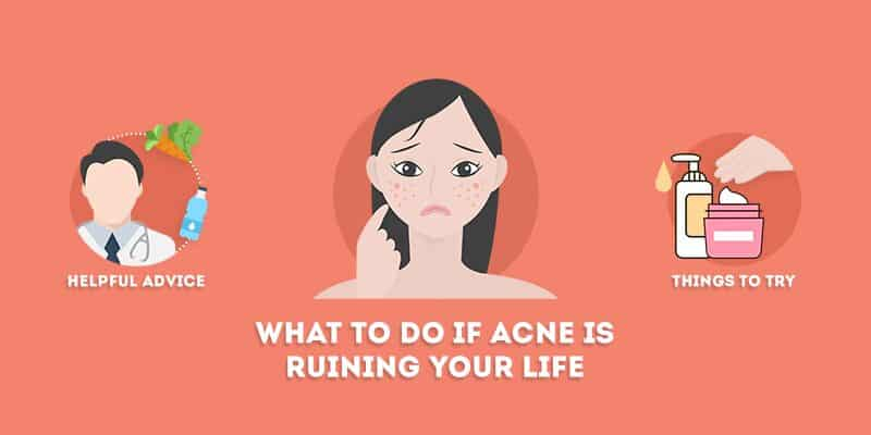 What to Do if Acne is Ruining Your Life