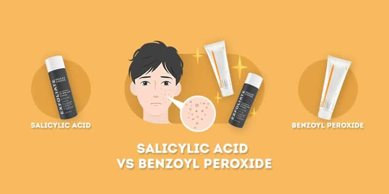 salicylic acid vs benzoyl peroxide: which is better