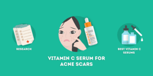 vitamin c serum for acne scars