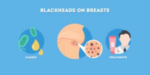 Blackheads on Breasts: Causes and Treatments