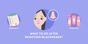 What to Do After Removing Blackheads
