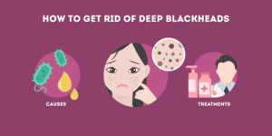 How to Get Rid of Deep Blackheads (At Home)