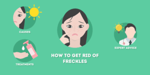 How to Get Rid of Freckles (Permanently)