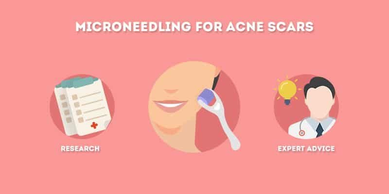Microneeding for Acne Scars