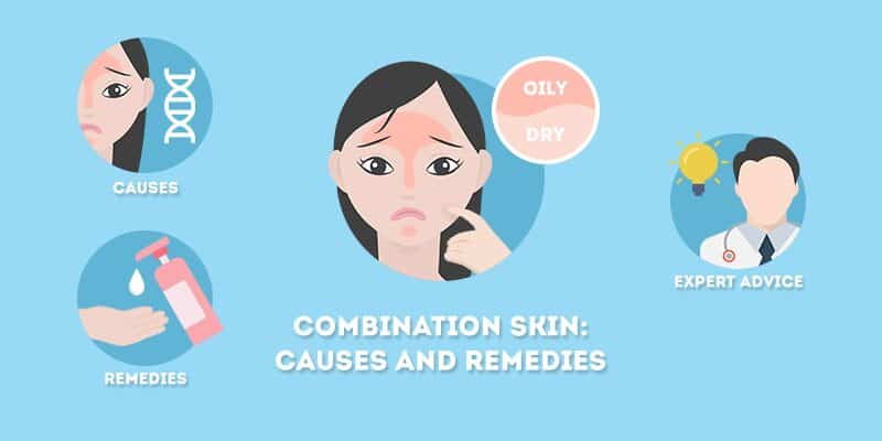 Combination Skin - Causes and Remedies